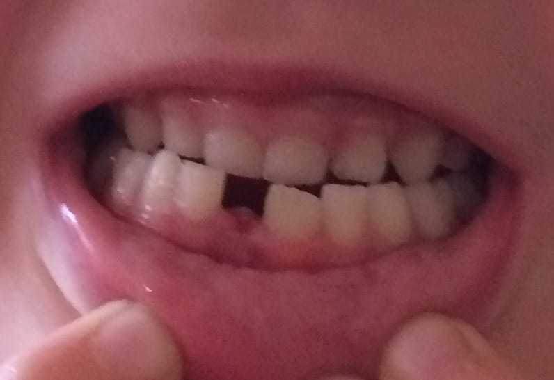 Missing baby tooth.